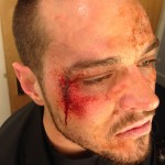 1. Matt Willis Beaten Hillbilly_smaller