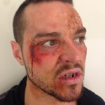 2. Matt Willis VeinsBurnsCut and blacked out teeth_smaller
